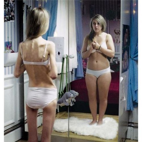 Anorexia3